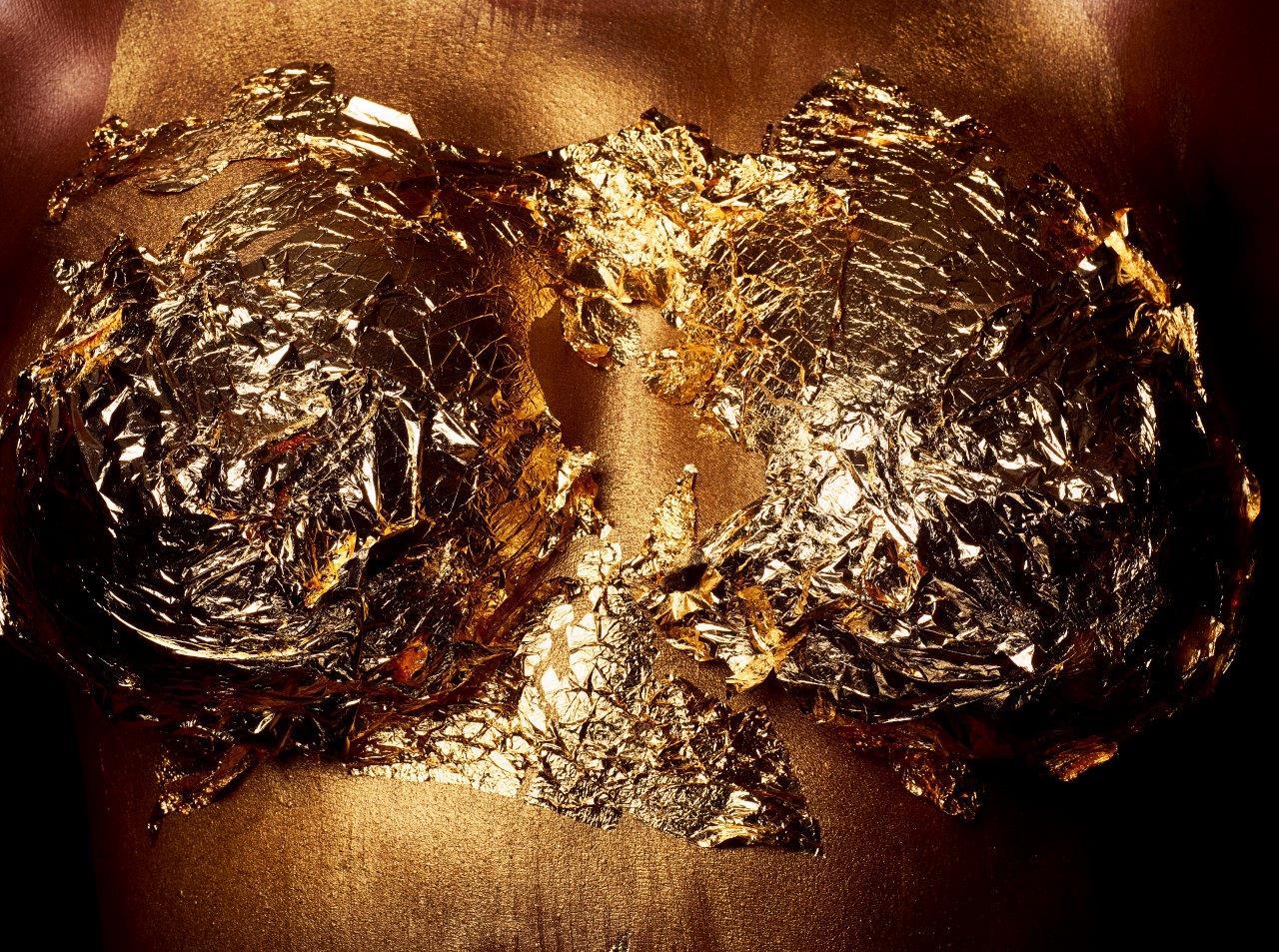 צלקות של זהב