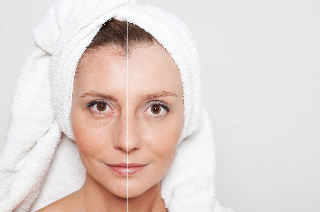 1החשיבות בבדיקת נקודות חן ונגעים לרגל חודש המודעות לסרטן העור צילום יחצ